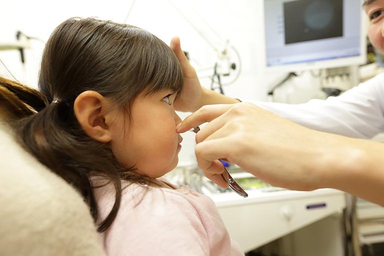 アレルギー性鼻炎の治療法